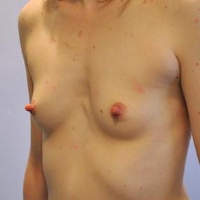 Pre Operative - Left Oblique