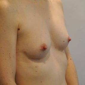 Post Operative - Right Oblique