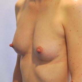 Post Operative - Left Oblique