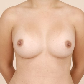 Breast implant in montreal