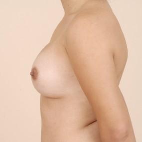 Augmentation mammaire avec implant gel 400 cc.