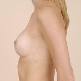Augmentation mammaire avec implant gel 265 cc.