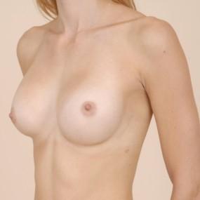 Augmentation mammaire avec implant gel 275 cc.