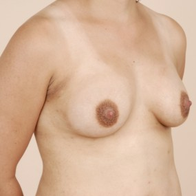 Post Operative Right Oblique