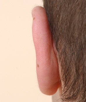 Left ear. Posterior view. 6 months after otoplasty.