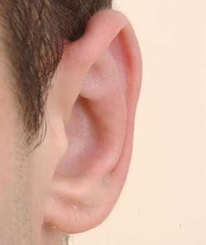 Left ear. 6 months after otoplasty