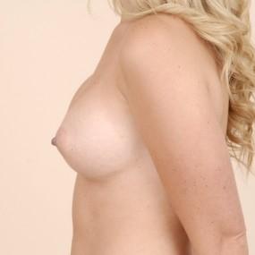 Augmentation mammaire avec implant gel 325 cc.