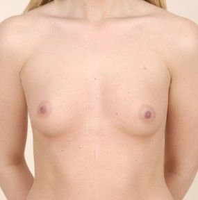 22 y.o female with breast hypoplasia. Frontal picture.