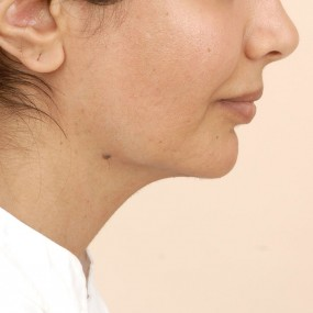 Post Operative Right profile