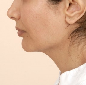 Post operative left profile