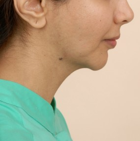 Pre Operative picture - Profile