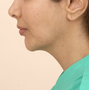 Pre operative Left Profile