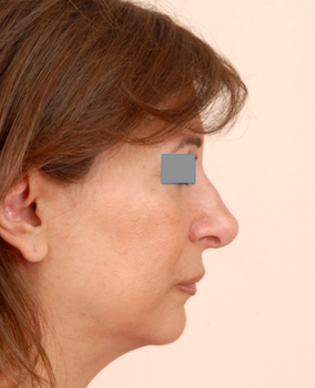 One year post operative Rhinoplasty