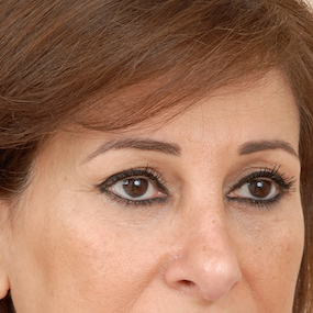 One year post operative lower Blepharoplasty