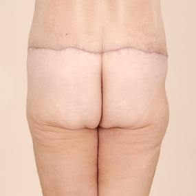postoperative posterior view