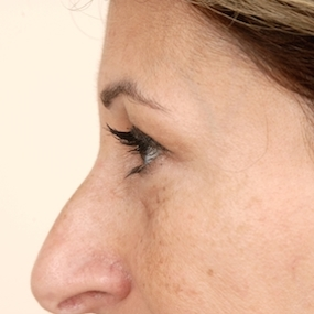 Pre operative lower Blepharoplasty