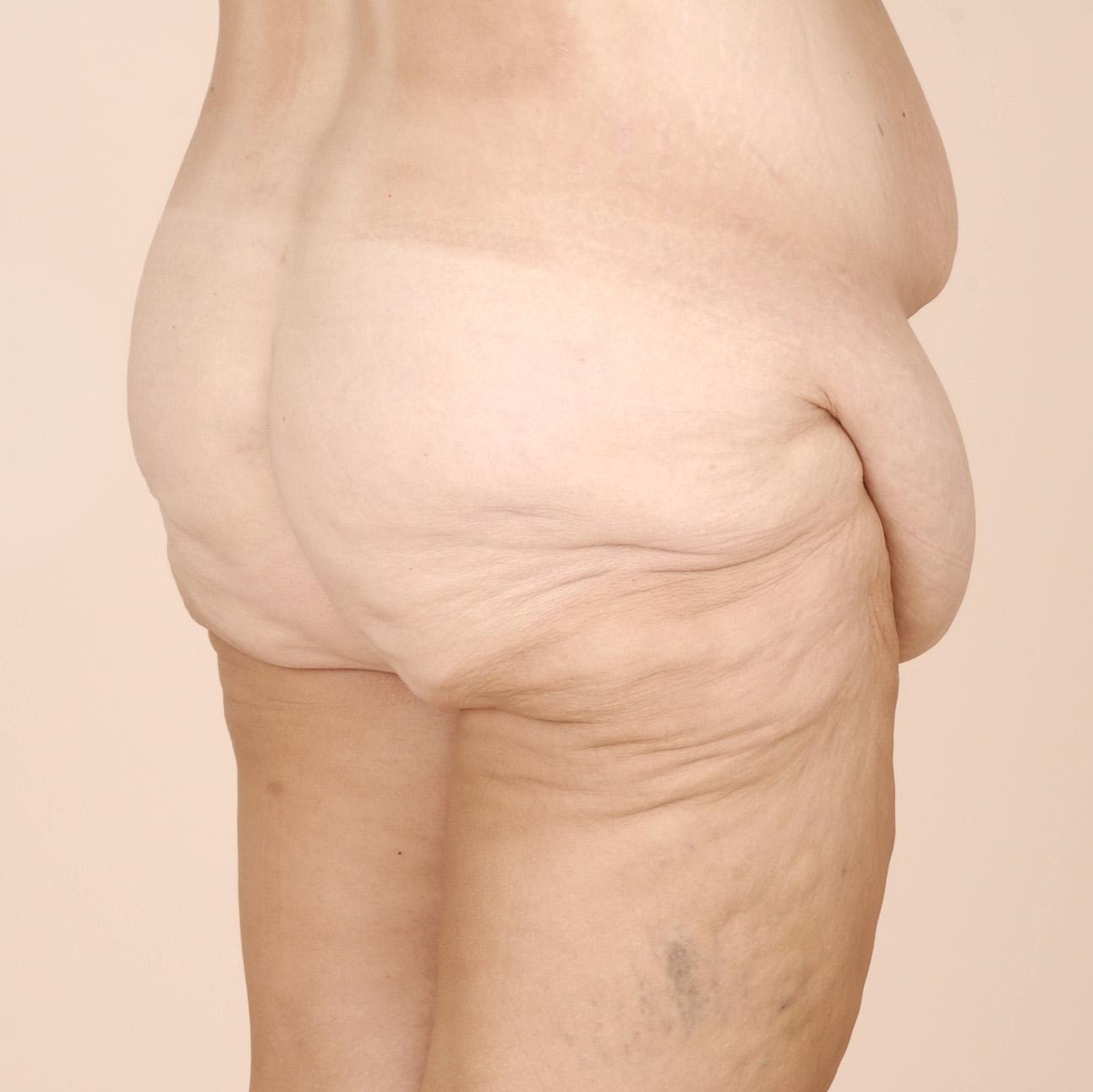pre operative right posterior