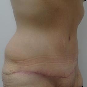 3 mois post abdominoplastie oblique droit