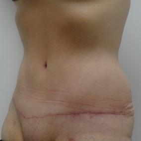 3 mois post abdominoplastie oblique gauche