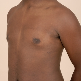 Post Operative Left Oblique