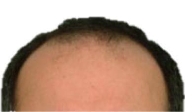 Pre Op Hair transplant