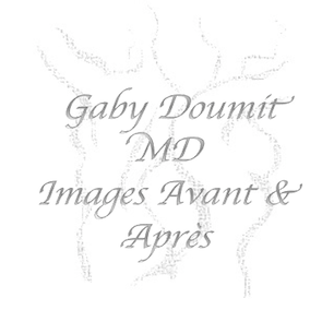 Click the Next Button to view Pre Op and Post Op Images of patients treated by Dr. Doumit