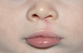 cleft-lip-after-close-6