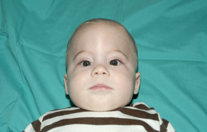 Six month old patient is shown before craniosynostosis surgery (left), and one year following surgery (right).