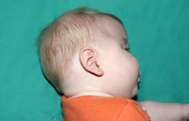 Patient is shown before surgical correction for craniosynostosis (left), and five months following procedure (right).