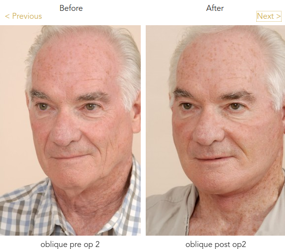 facelift surgery before after