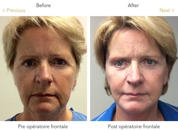 Mini Facelift Surgery