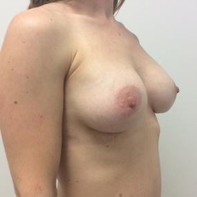 Post Op Augmentation mammaire avec implant eau saline 325 cc.