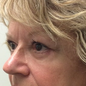 4 semaines Post blepharoplastie sup inf