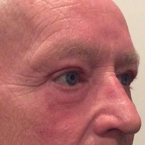 Apres Blepharoplastie Superieure et Inferieure