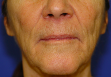 Before Full Field Erbium Laser Treatment