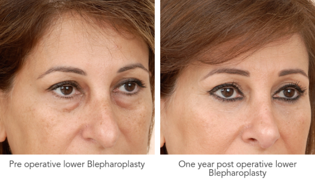 Blepharoplasty surgery Before After