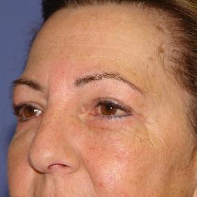 2 mois Apres chirurgie des Paupières supérieures et inférieures