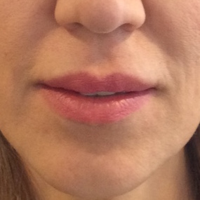 Before Lip Lift