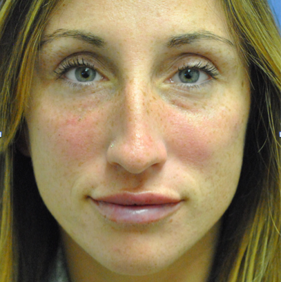 Apres injection de deux syringues de juvederme voluma aux joues et deux syringues volbella aux lèvres