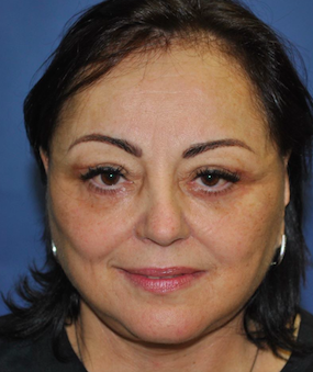 Post lifting visage, cou et blepharoplastie inferieure