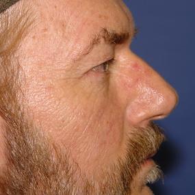 Profile avant Blepharoplastie