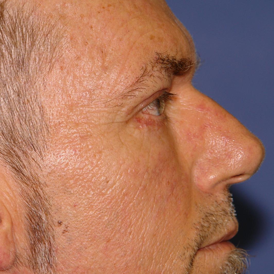 Profile Après Blepharoplastie