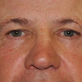 61 ans, Après Blepharoplastie Inférieure