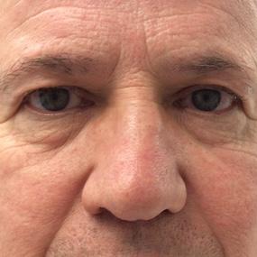 61 ans Avant Blepharoplastie Inférieure