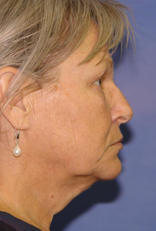 53 ans Avant lifting visage