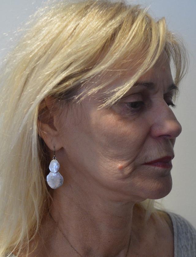 Une femme de 64 ans avant un Lifting du visage - oblique pre operatoire