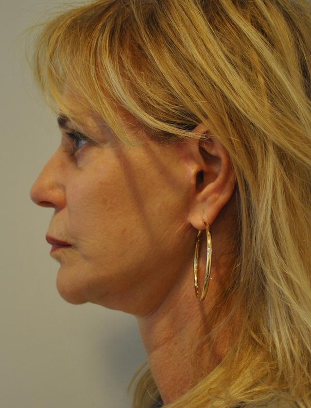 Une femme de 64 ans, 6 mois après un Lifting du visage - frontale post opératoire