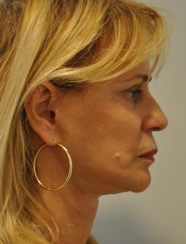 Une femme de 64 ans, 6 mois après un Lifting du visage - profile post opératoire