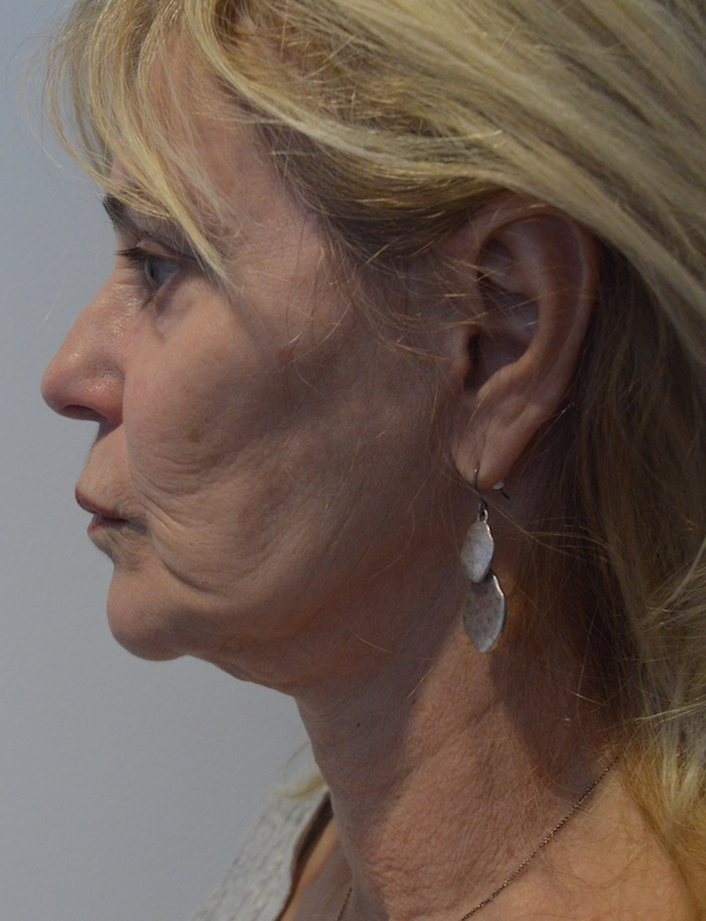 Une femme de 64 ans avant un Lifting du visage - profile pre operatoire