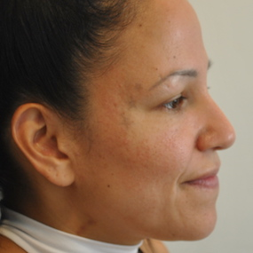 4 semaines post rhinoplastie